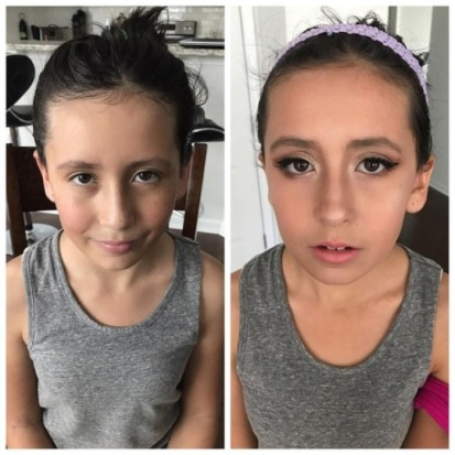 before and after zia